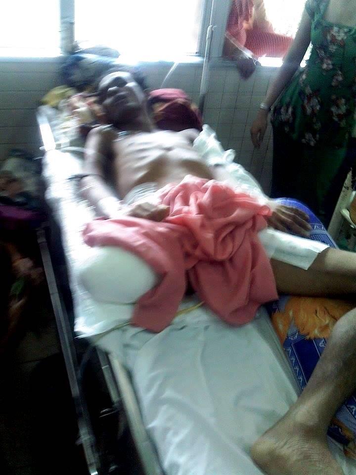 Bác sĩ đã quyết định cưa bỏ chân phải vì hoại tử sau ca tai nạn, hiện anh Khiêm đang được chạy thận nhân tạo