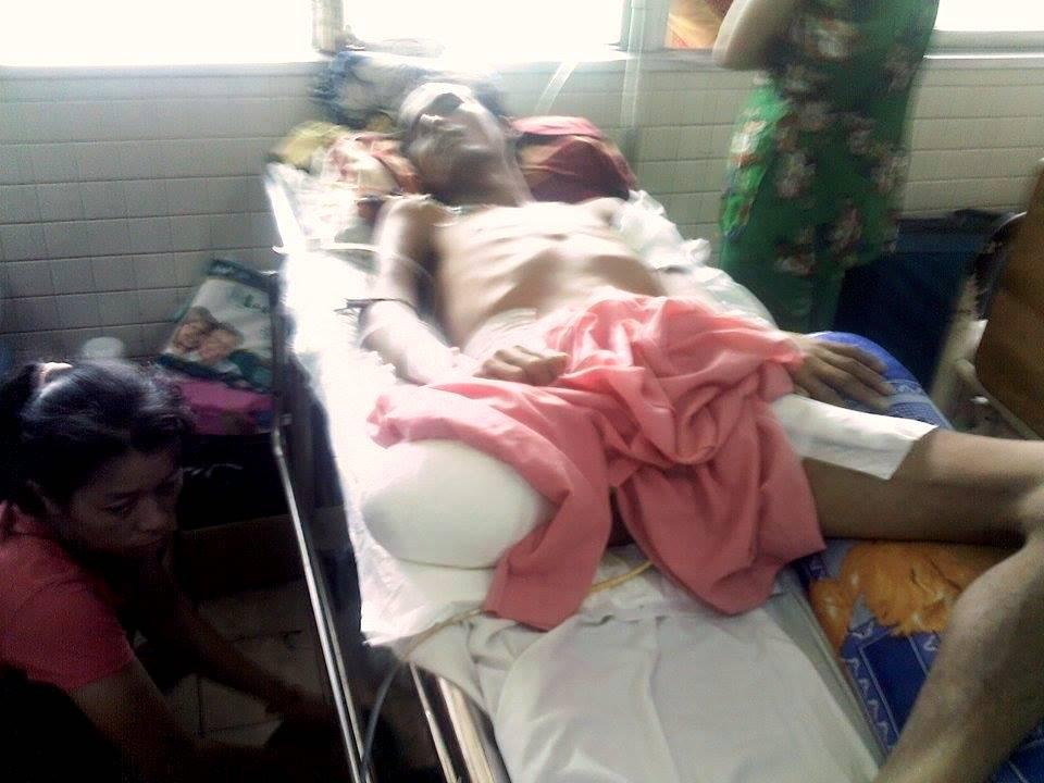 Anh Trượng Anh Khiêm đang nằm điều trị tại bệnh viện Chợ Rẫy.